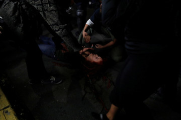 An Injured woman is being tended to during a demonstration against the planned speech by conservative political commentator Ben Shapiro at UC Berkeley in Berkeley