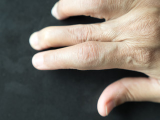Hand of patient Rheumatoid Arthritis