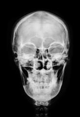 front face skull x-ray.