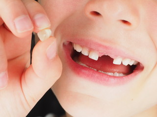 Little young girl holding lost tooth between fingers whilst smiling at closeup