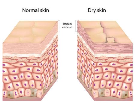3D anatomy of dry skin