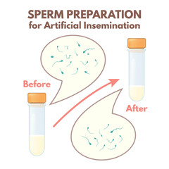 preparation of sperm