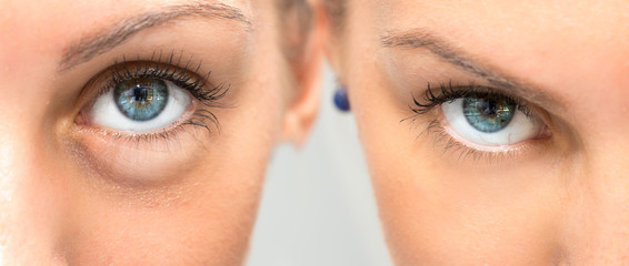 Eye with and without swelling before and after cosmetic treatment
