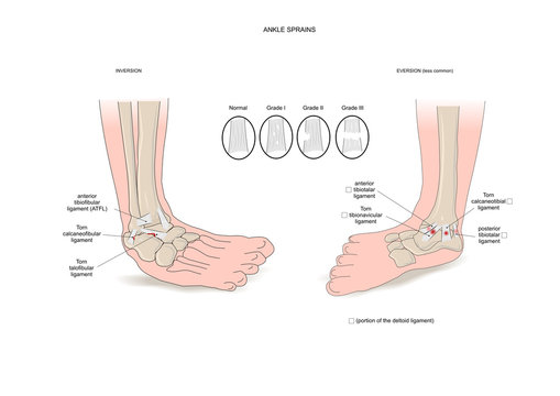 Two common types of ankle sprain (inversion and eversion)