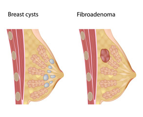 Common benign breast lumps