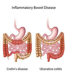 Inflammatory bowel disease (IBD)