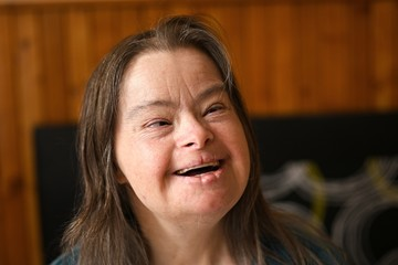 portrait of young adult woman with down syndrome