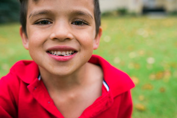 close up of a boy smiling with missing front teeth