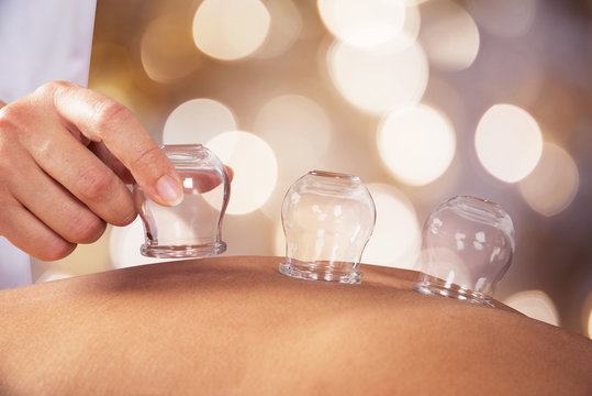 Person Giving Cupping Treatment