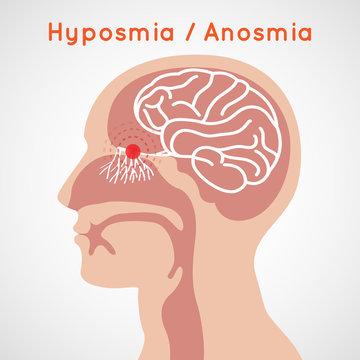 Hyposmia and Anosmia logo vector icon design illustration