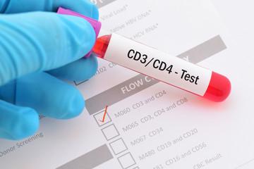 Blood sample for CD3/CD4 test
