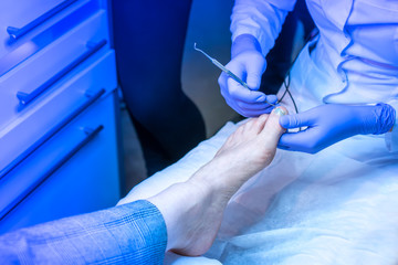 Treatment of nails. Ingrown nail. pedecure.