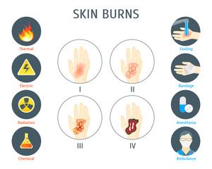 Human Skin Burns Infographic Card Poster. Vector