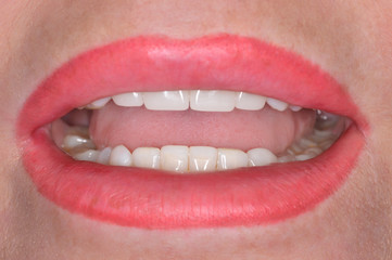Close up of a patient's mouth at a dental clinic