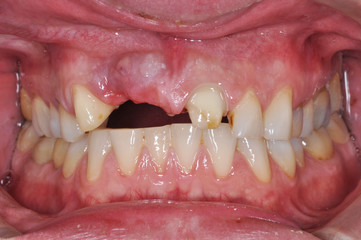 Close up of a patient's mouth without tooth in dental clinic