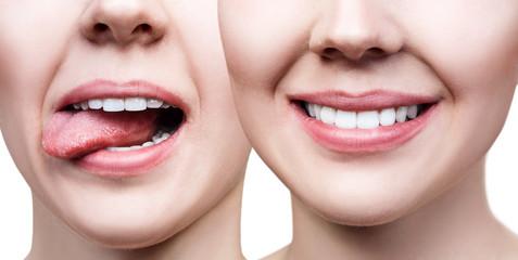 Collage of perfect female teeth closeup.