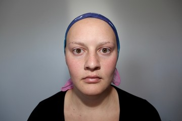 Young cancer patient in a headscarf stares into camera with a serious face