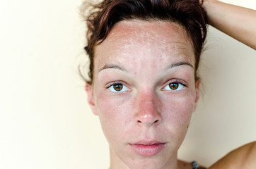 Burn female face