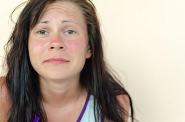 Sunburn female face