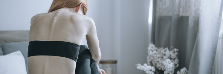 Skinny back of bulimic woman