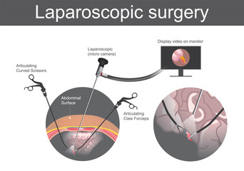 Laparoscopic surgery. Technical surgery which operations are performed far from their location through small incisions in abdominal surface or the body. Large Intestine system, Illustration body parts