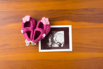 photo of ultrasound baby foot with cute pink wool shoe on wood desktop