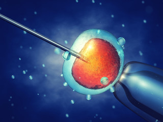In vitro fertilisation , Injecting sperm into egg cell , Assisted reproductive treatment
