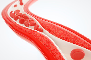 Angioplasty without stent placement- 3D rendering