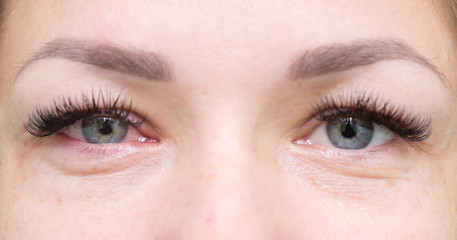 healthy and irritated eyes