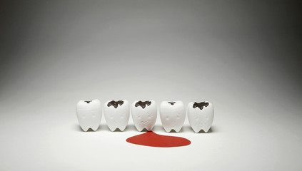 Model of Decayed tooth and Scurvy Teeth Bleeding for Dental Unhealthy