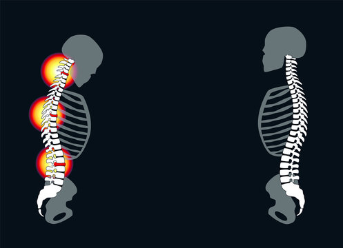 Back problems, neck aches, slipped disc prolapses - curved back with severe pain and healthy back in comparison - isolated vector illustration on black background.