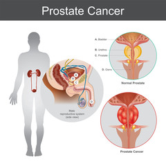 The Prostate cancer is the most common cancer among men not skin cancer. Illustration anatomy body part.