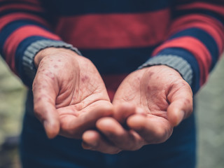 Close up on a man with spots on hands begging