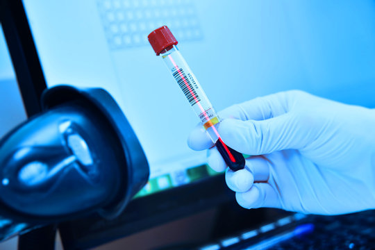 scanning bar code of test tubes in a bacteriological laboratory