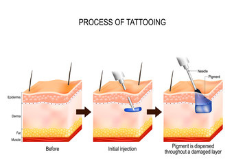 process of tattooing