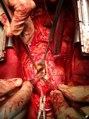 Surgeon hands are tying a knot during the open heart procedure