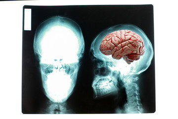 Concept of large human  brain  on x-ray picture of skull.