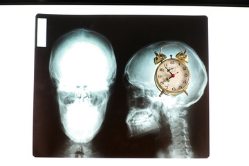 Alarm Clock in mind on x-ray picture of skull.