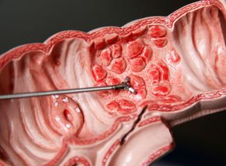 Darstellung einer Koloskopie und Entfernung von Wucherungen im menschlichen Darm an einem Medizinmodell