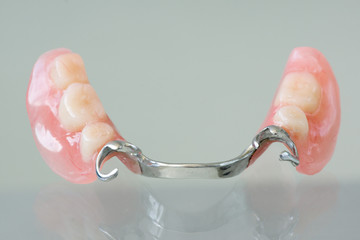 Clasp denture with a metal arc