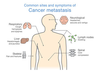 Most common sites and symptoms of Cancer Metastasis. Illustration about medical diagram of deadly diseases.