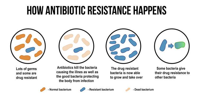 How antibiotic resistance happens diagram