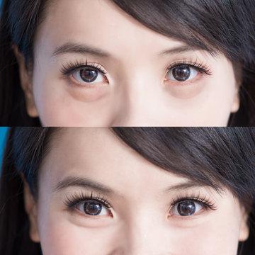 woman eye bags