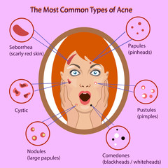 Different type of acne. Vector Illustration with skin problems. woman face isolated