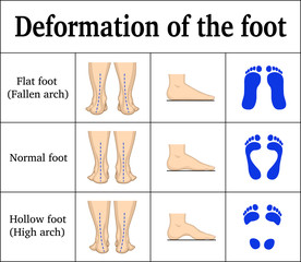 Deformation of the foot