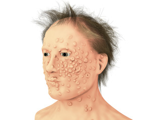 A man with smallpox infection. This infections is caused by variola virus, a virus from Orthopoxviridae family, it is highly contagious disease eradicated by vaccination, 3D illustration
