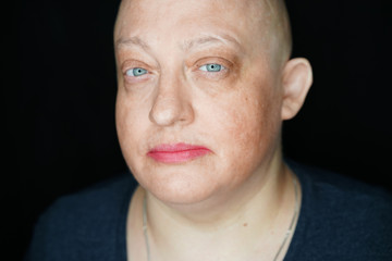 portrait of a bald woman