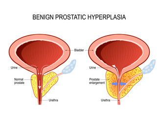 Benign prostatic hyperplasia (BPH). prostate enlargement