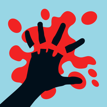 Injury and accident leading to amputation of fingers on the hand - fingers are cutted off and chopped off. Blood stain around palm. Vector illustration