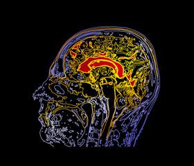 Topographic map MRI of the human brain.